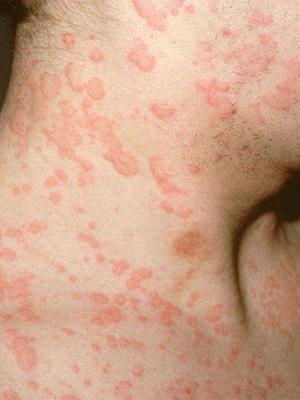 Раздражение на коже покраснение. Кожные заболевания: фото ...