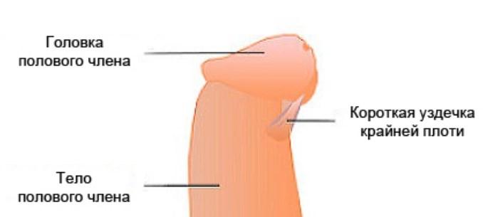 Оголення головки при секс