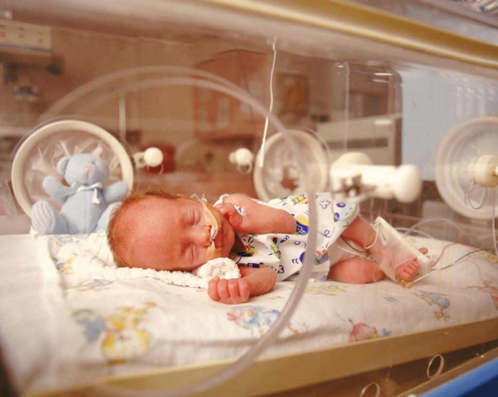 Фото недоношенных детей по месяцам