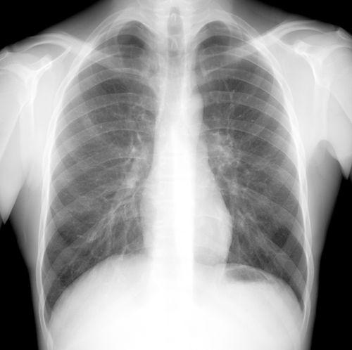 фото снимок здоровых легких